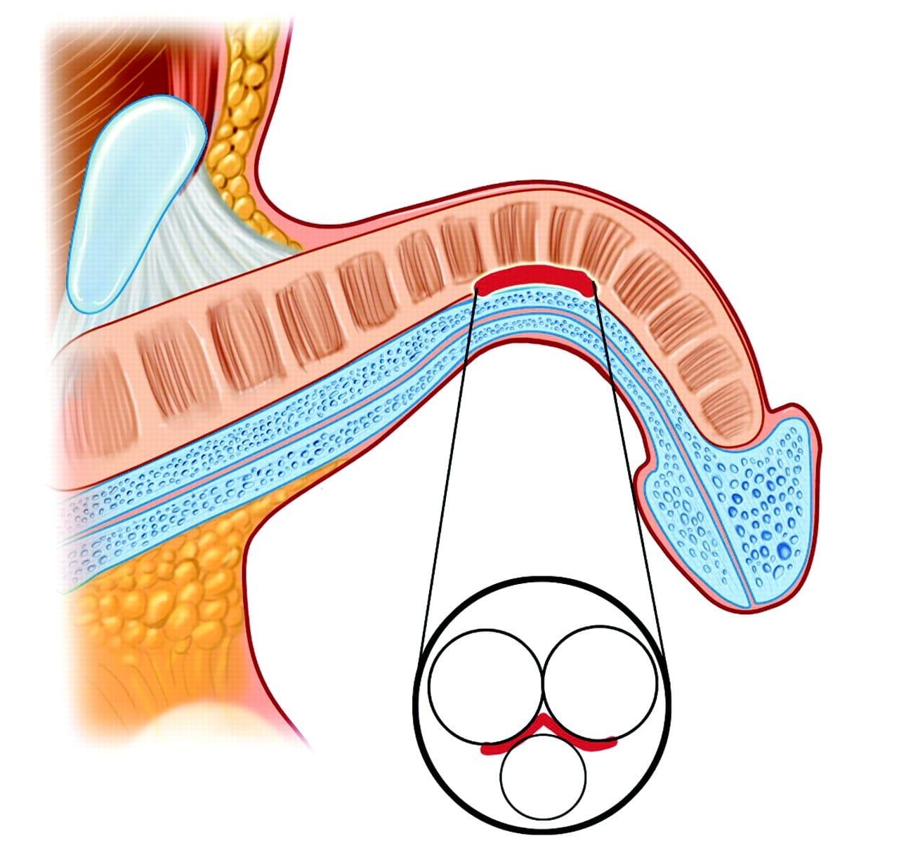 Симптомы болезни Пейрони