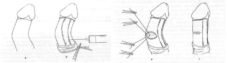 Операция Несбита